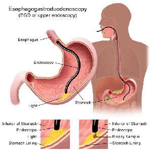 Esophagogastroduodenoscopy (EGD or upper endoscopy)