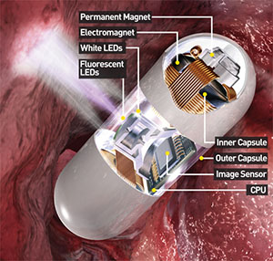 Video Capsule Endoscopy | Parts of the Capsule